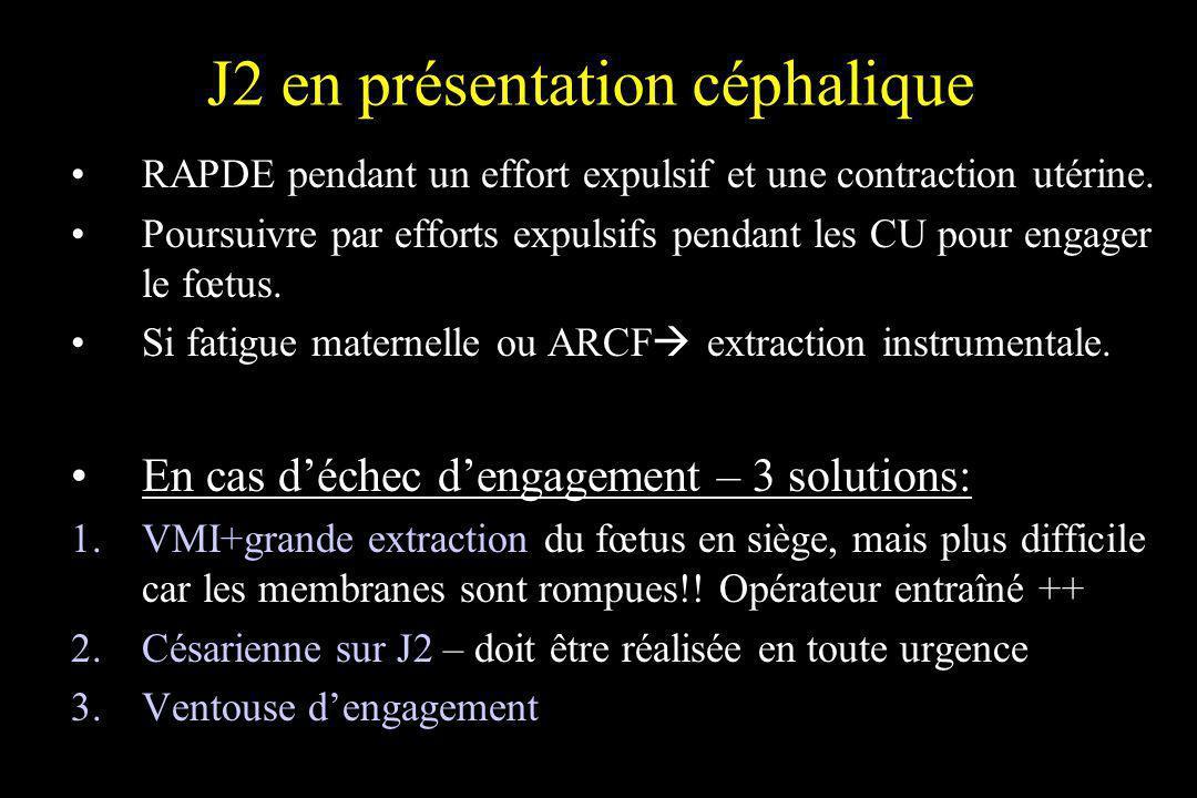 J2 en présentation céphalique RAPDE pendant un effort expulsif et une contraction utérine. Poursuivre par efforts expulsifs pendant les CU pour engage
