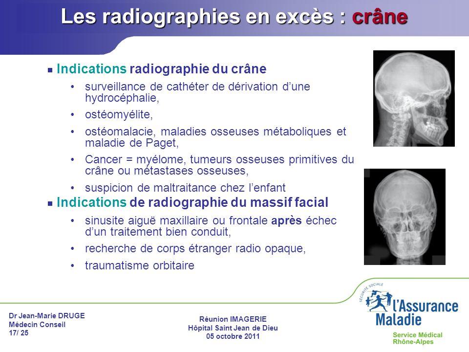 Dr Jean-Marie DRUGE Médecin Conseil 17/ 25 Réunion IMAGERIE Hôpital Saint Jean de Dieu 05 octobre 2011 Les radiographies en excès : crâne Indications