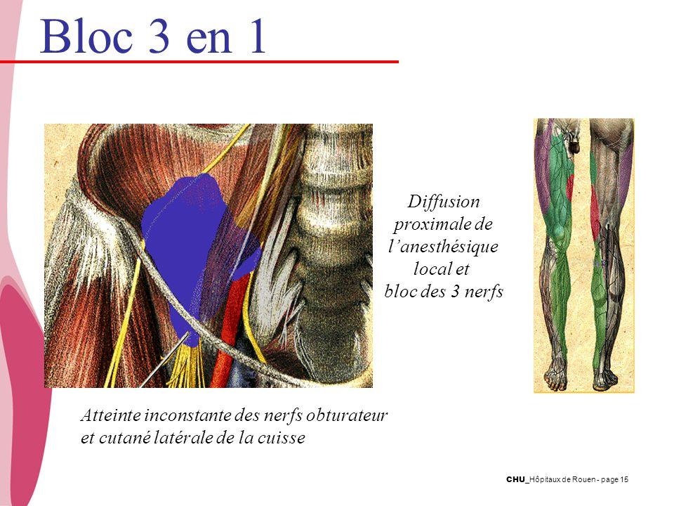 CHU _Hôpitaux de Rouen - page 15 Diffusion proximale de lanesthésique local et bloc des 3 nerfs Atteinte inconstante des nerfs obturateur et cutané la