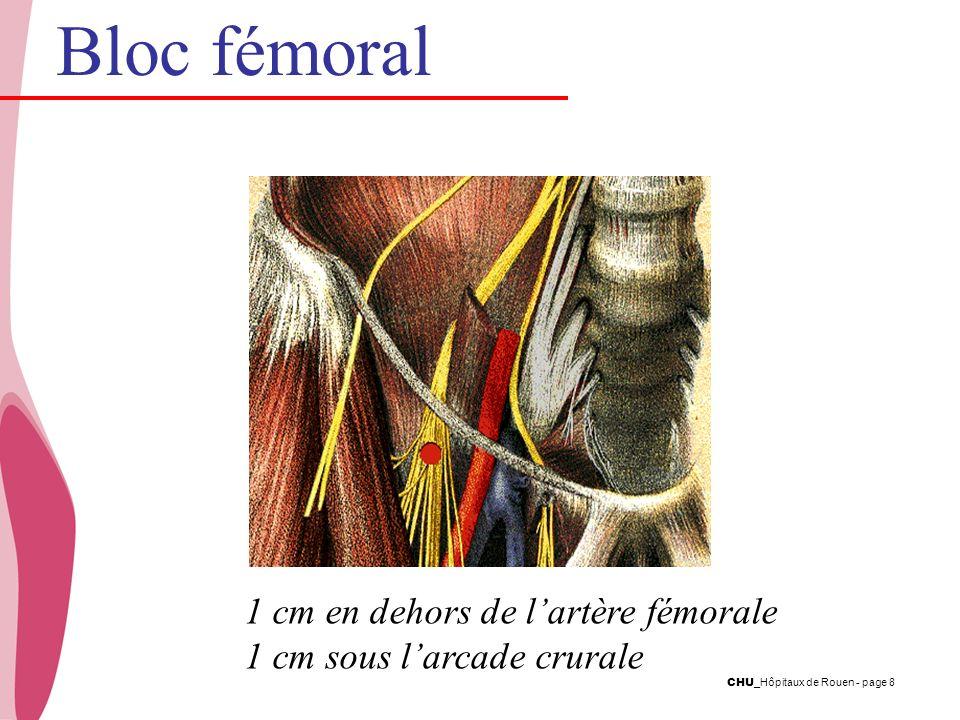 CHU _Hôpitaux de Rouen - page 8 1 cm en dehors de lartère fémorale 1 cm sous larcade crurale Bloc fémoral