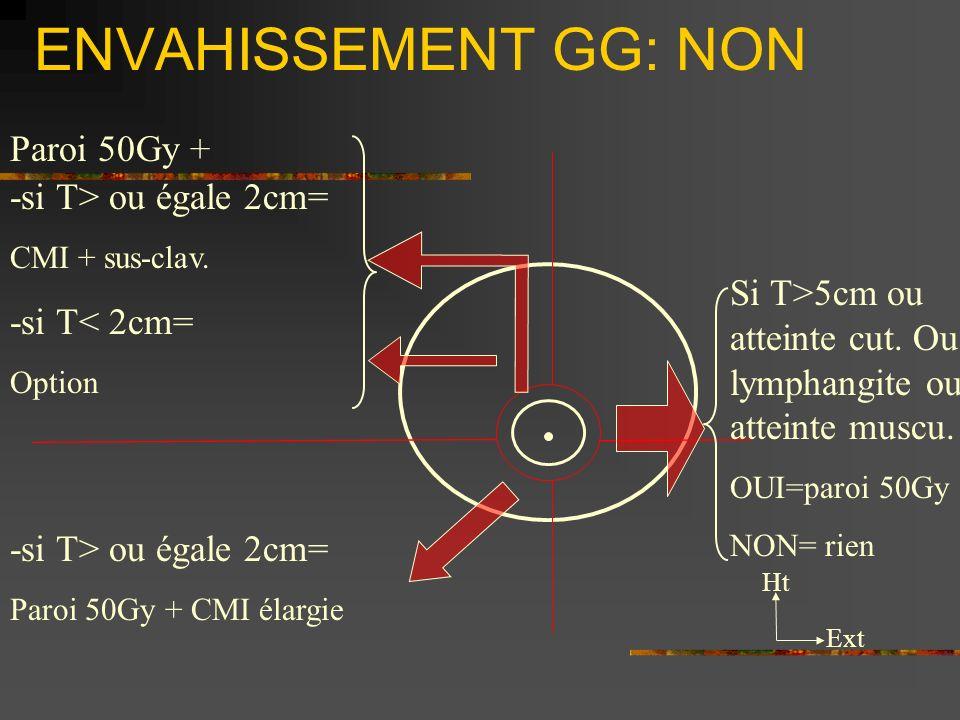 ENVAHISSEMENT GG: NON Ht Ext -si T> ou égale 2cm= CMI + sus-clav. -si T< 2cm= Option -si T> ou égale 2cm= Paroi 50Gy + CMI élargie Si T>5cm ou atteint