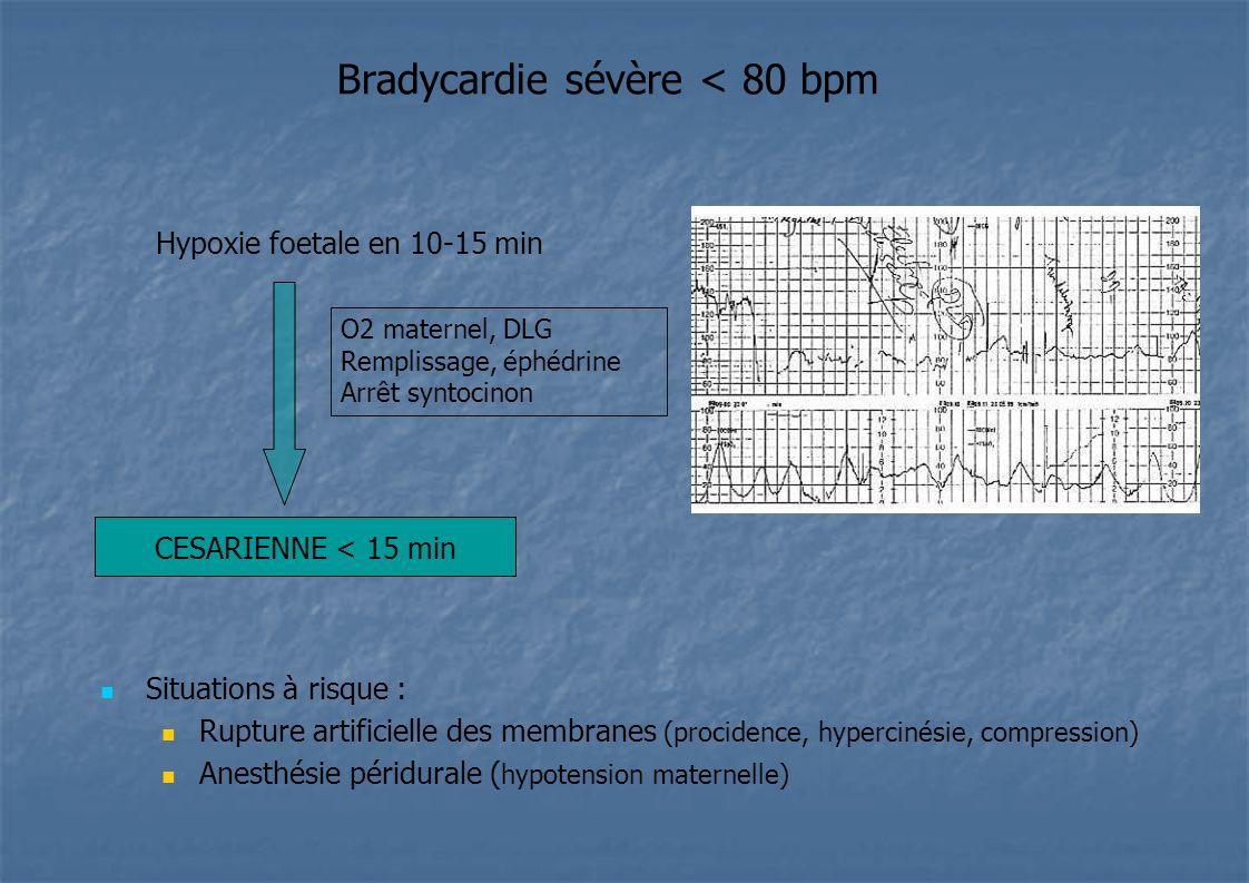 Bradycardie sévère < 80 bpm Hypoxie foetale en 10-15 min Situations à risque : Rupture artificielle des membranes (procidence, hypercinésie, compressi