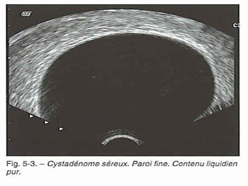 CA 125 Valeur seuil pour une femme ménopausée = 35 UI/mL Au dela : évoquer pathologie maligne MAIS peut être augmenté dans dautres circonstances ( endometriose, autres pathologies malignes….) Dans tous les cas, si CA 125 > 35 : bilan dextension et prise en charge chirurgicale ( quelle que soit la taille de la masse)