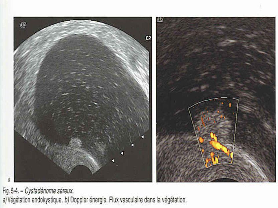 Prise en charge chirurgicale 2 voies dabord possibles : Coelioscopie Laparotomie Examen extemporané dans tous les cas .