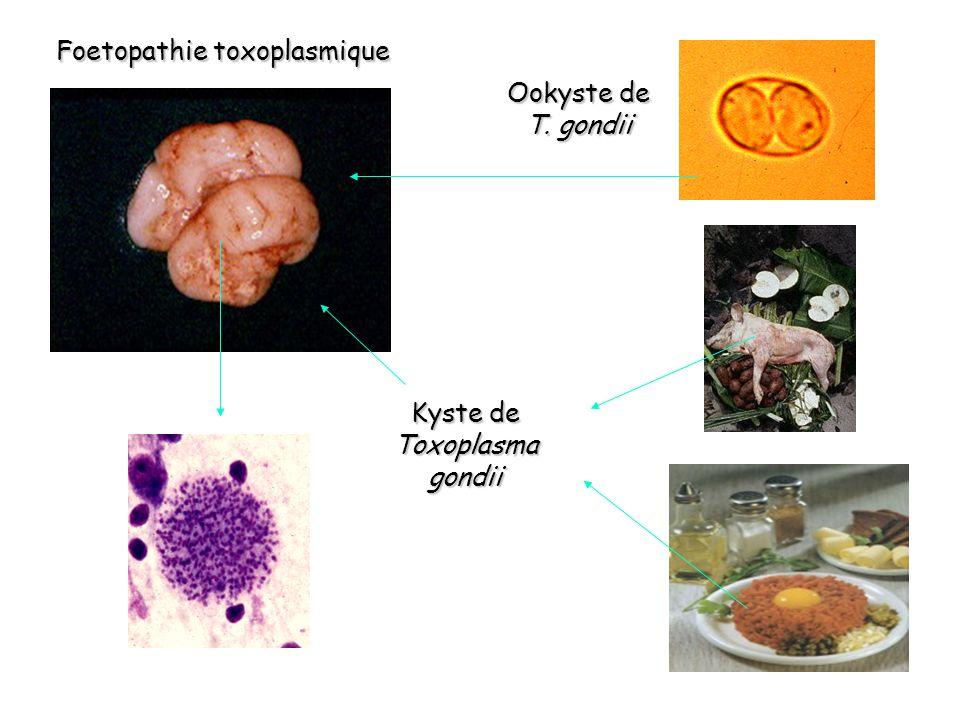 Foetopathie toxoplasmique Kyste de Toxoplasma gondii Ookyste de T. gondii