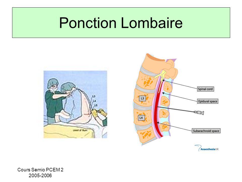 Cours Semio PCEM 2 2005-2006 Ponction Lombaire