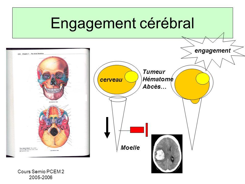 Cours Semio PCEM 2 2005-2006 Engagement cérébral cerveau Moelle Tumeur Hématome Abcès… engagement