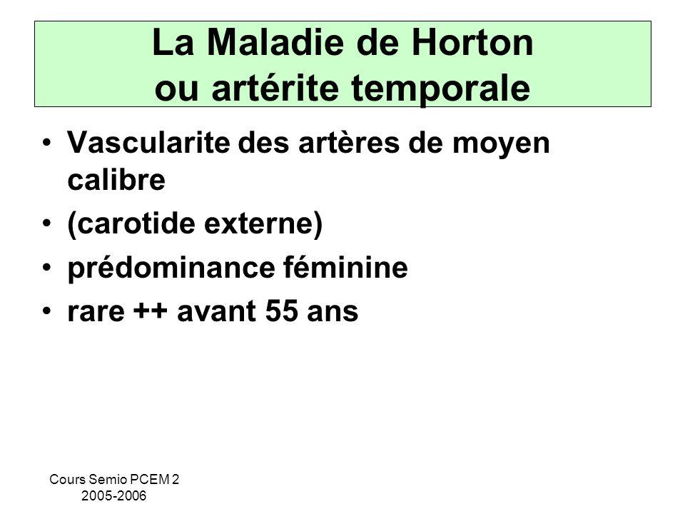 Cours Semio PCEM 2 2005-2006 La Maladie de Horton ou artérite temporale Vascularite des artères de moyen calibre (carotide externe) prédominance fémin