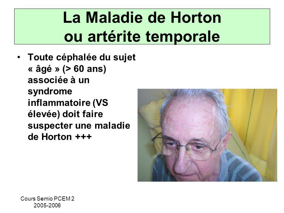 Cours Semio PCEM 2 2005-2006 La Maladie de Horton ou artérite temporale Toute céphalée du sujet « âgé » (> 60 ans) associée à un syndrome inflammatoir