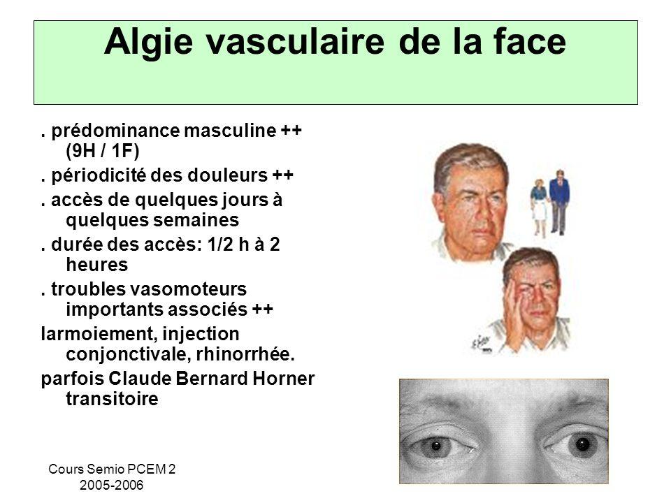 Cours Semio PCEM 2 2005-2006 Algie vasculaire de la face. prédominance masculine ++ (9H / 1F). périodicité des douleurs ++. accès de quelques jours à