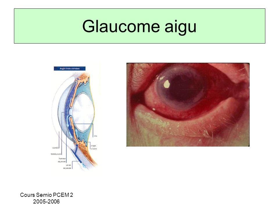 Cours Semio PCEM 2 2005-2006 Glaucome aigu