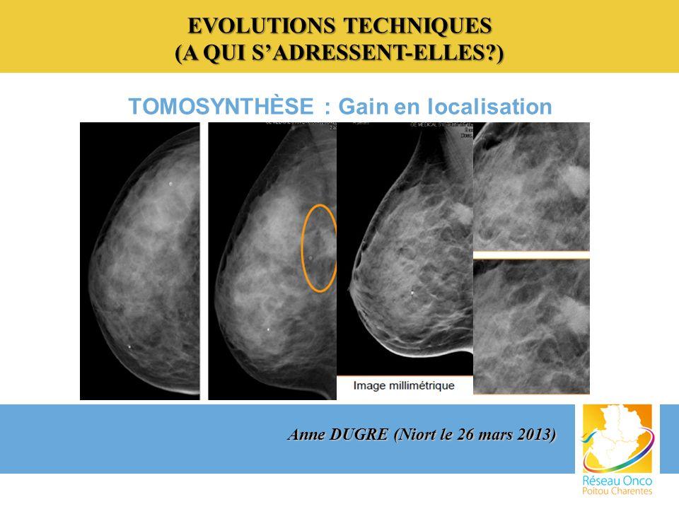EVOLUTIONS TECHNIQUES (A QUI SADRESSENT-ELLES?) TOMOSYNTHÈSE : Gain en localisation Anne DUGRE (Niort le 26 mars 2013)