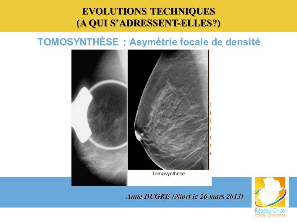 EVOLUTIONS TECHNIQUES (A QUI ?) EVOLUTIONS TECHNIQUES (A QUI SADRESSENT-ELLES?) TOMOSYNTHÈSE Avantages : o s affranchir des superpositions tissulaires responsables dune perte de sensibilité dans les seins denses en fournissant une étude tridimensionnelle du sein.