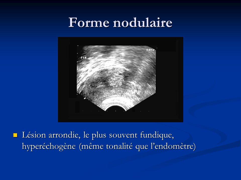 Forme nodulaire Lésion arrondie, le plus souvent fundique, hyperéchogène (même tonalité que lendomètre)
