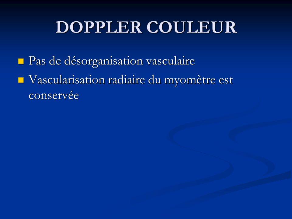 DOPPLER COULEUR Pas de désorganisation vasculaire Pas de désorganisation vasculaire Vascularisation radiaire du myomètre est conservée Vascularisation