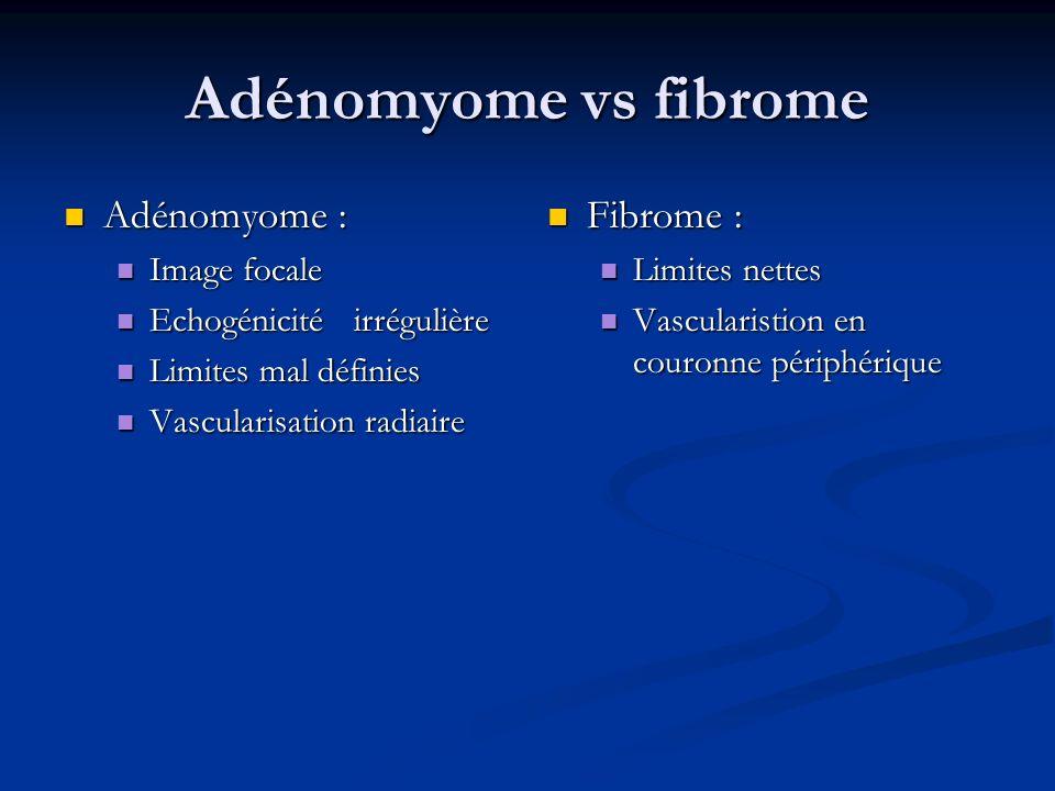 Adénomyome vs fibrome Adénomyome : Adénomyome : Image focale Image focale Echogénicité irrégulière Echogénicité irrégulière Limites mal définies Limit