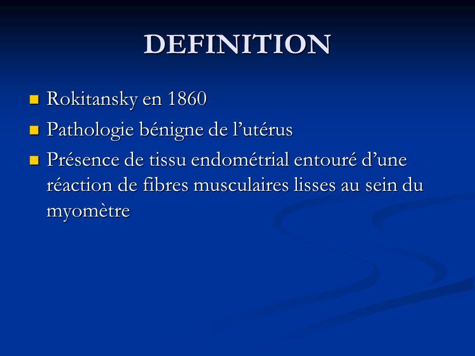 DEFINITION Rokitansky en 1860 Rokitansky en 1860 Pathologie bénigne de lutérus Pathologie bénigne de lutérus Présence de tissu endométrial entouré dun