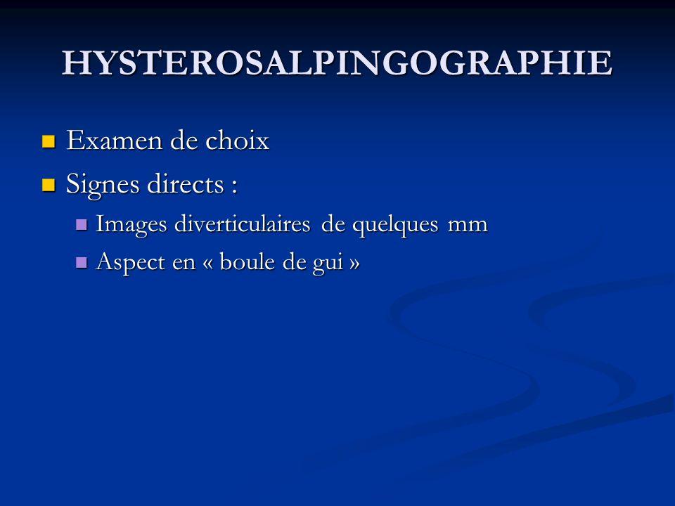 HYSTEROSALPINGOGRAPHIE Examen de choix Examen de choix Signes directs : Signes directs : Images diverticulaires de quelques mm Images diverticulaires