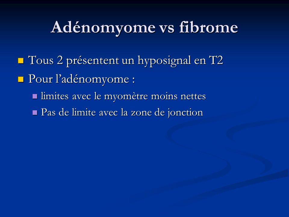 Adénomyome vs fibrome Tous 2 présentent un hyposignal en T2 Tous 2 présentent un hyposignal en T2 Pour ladénomyome : Pour ladénomyome : limites avec l