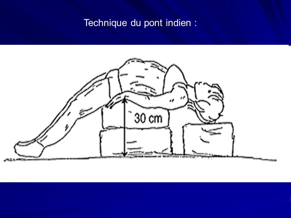 Technique du pont indien :