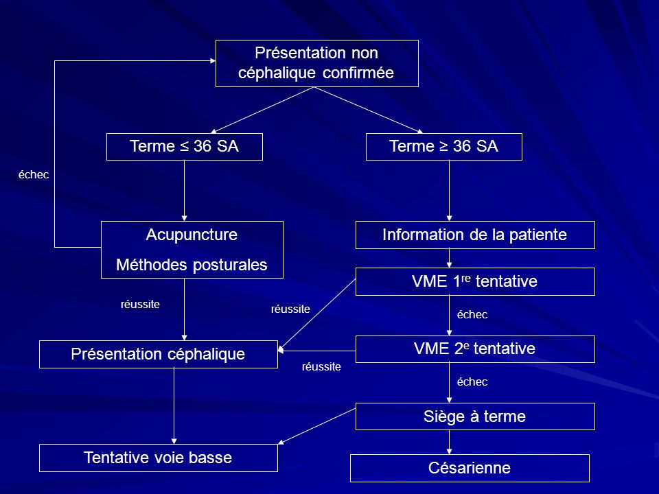 Présentation non céphalique confirmée Terme 36 SA Acupuncture Méthodes posturales Information de la patiente échec Césarienne Siège à terme VME 2 e te