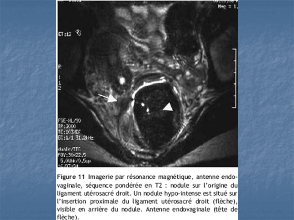 Imagerie (4) UIV quand:-contrôle rénal lors dune atteinte vésicale -recherche dune compression extrinsèque de(s) uretère(s) Cystoscopie localisation des lésions par rapport aux méats urétéraux > modifie la prise en charge chirurgicale