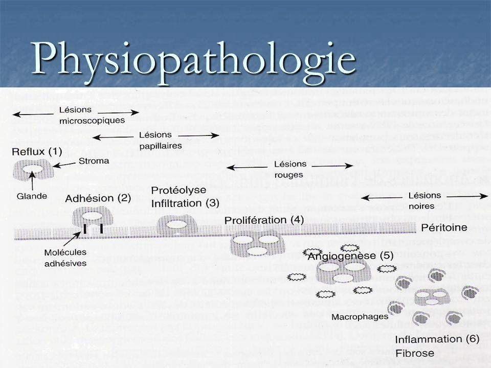 Diversité histologique Hétérogénéité des lésions: Hétérogénéité des lésions: - lésion dadénomyose (hyperplasie musculaire lisse) -intermédiaire - fibrose > douleurs