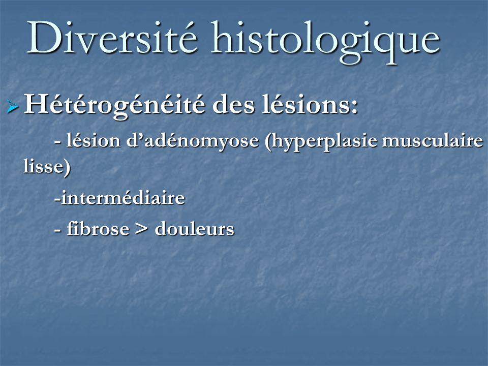 Diversité géographique Diversité de localisation Diversité de localisation Uni ou multi focale Uni ou multi focale Ligaments utéro-sacrés (58 %)83 % Vaginale (18 %)59 % Intestinale (16 %)29 % Vésicale (8 %)59 % selon Chapron 241 patientes Exérèse de 344 lésions