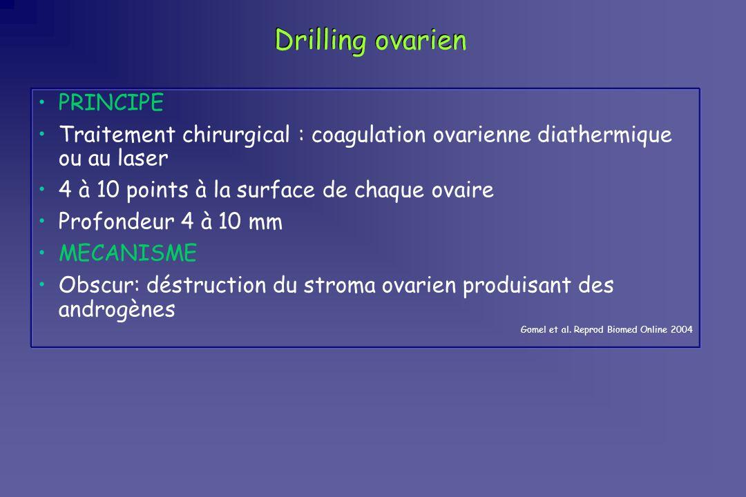 Drilling ovarien PRINCIPE Traitement chirurgical : coagulation ovarienne diathermique ou au laser 4 à 10 points à la surface de chaque ovaire Profonde