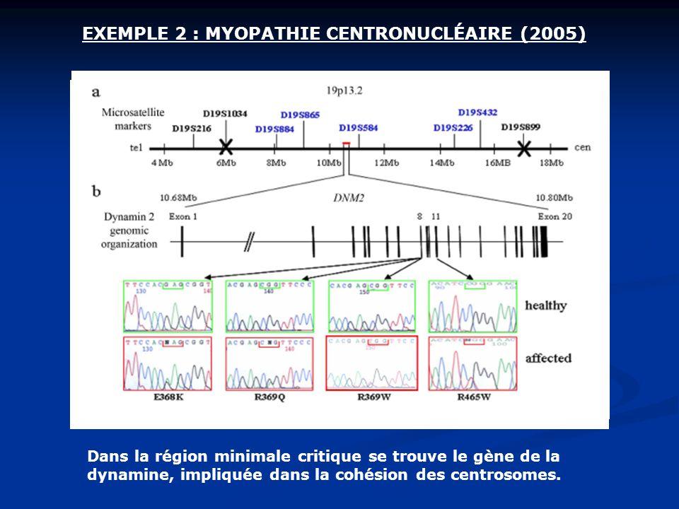 Dans la région minimale critique se trouve le gène de la dynamine, impliquée dans la cohésion des centrosomes.