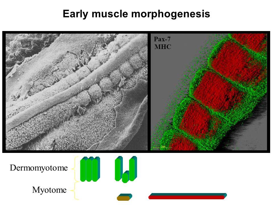 Pax-7 MHC Early muscle morphogenesis Dermomyotome Myotome