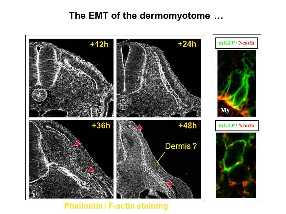 The EMT of the dermomyotome … Phalloidin / F-actin staining +12h +24h +36h+48h Dermis ? mGFP / Ncadh My