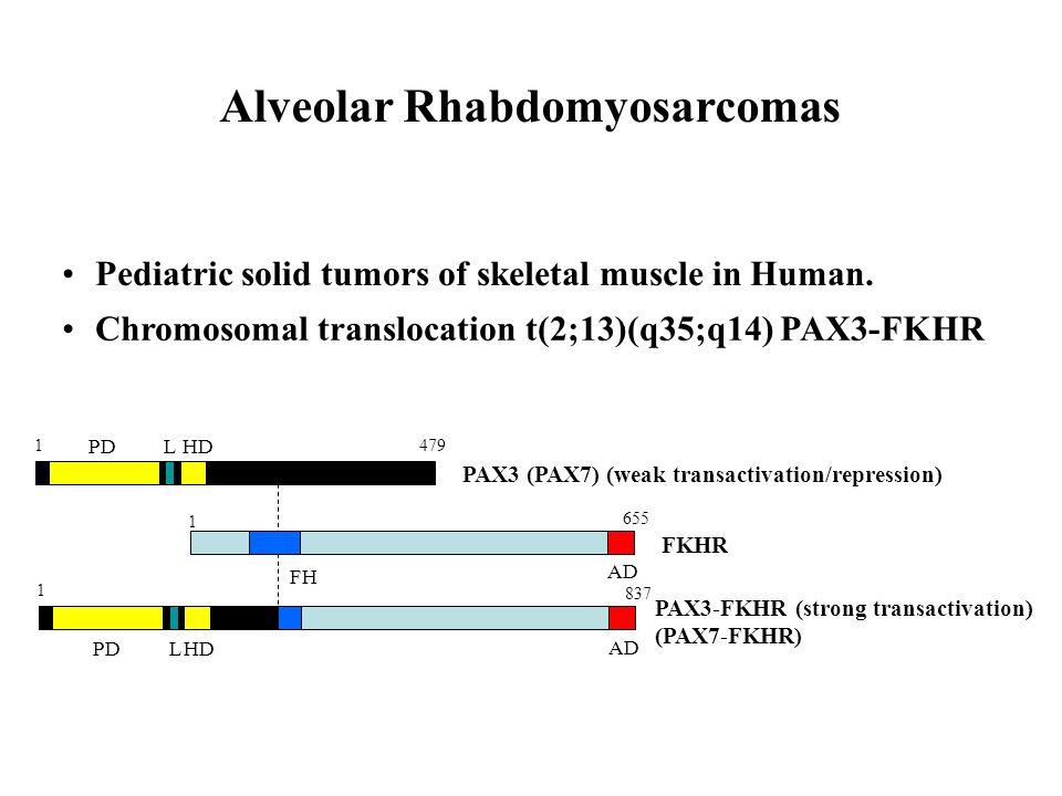 Pediatric solid tumors of skeletal muscle in Human. Chromosomal translocation t(2;13)(q35;q14) PAX3-FKHR PDLHD PAX3 (PAX7) (weak transactivation/repre