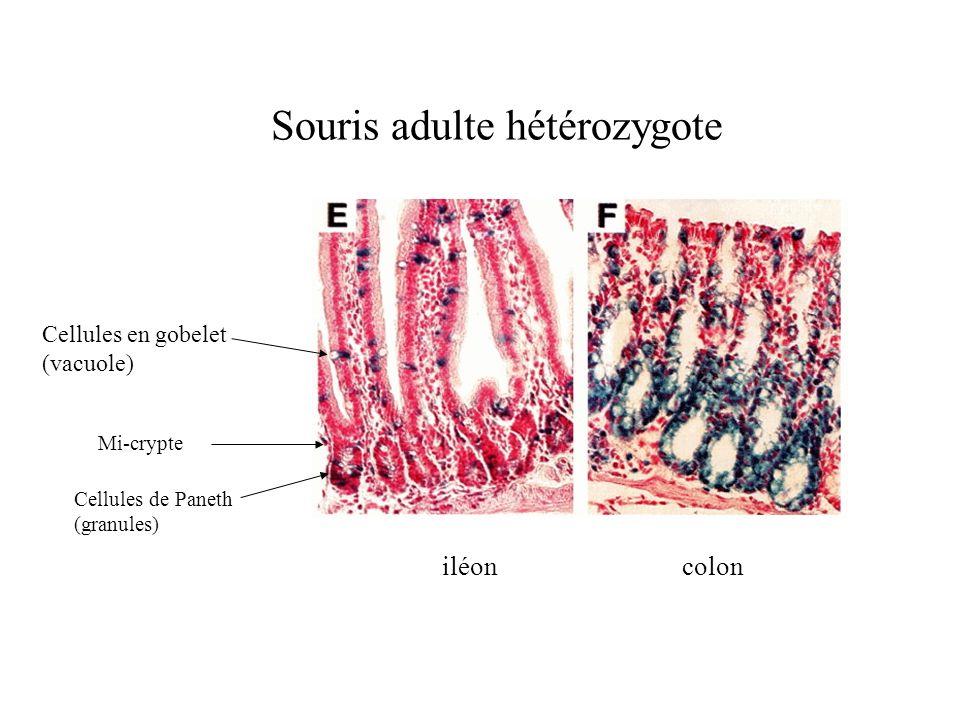 Souris adulte hétérozygote iléoncolon Cellules en gobelet (vacuole) Cellules de Paneth (granules) Mi-crypte