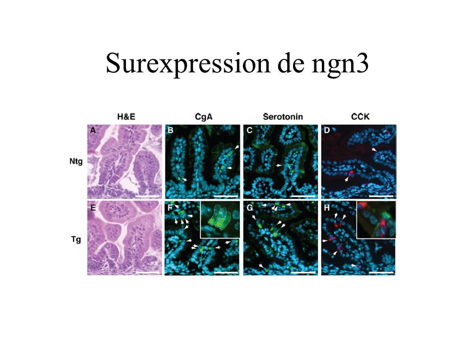 Surexpression de ngn3