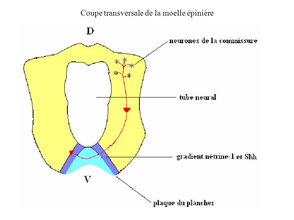 Coupe transversale de la moelle épinière