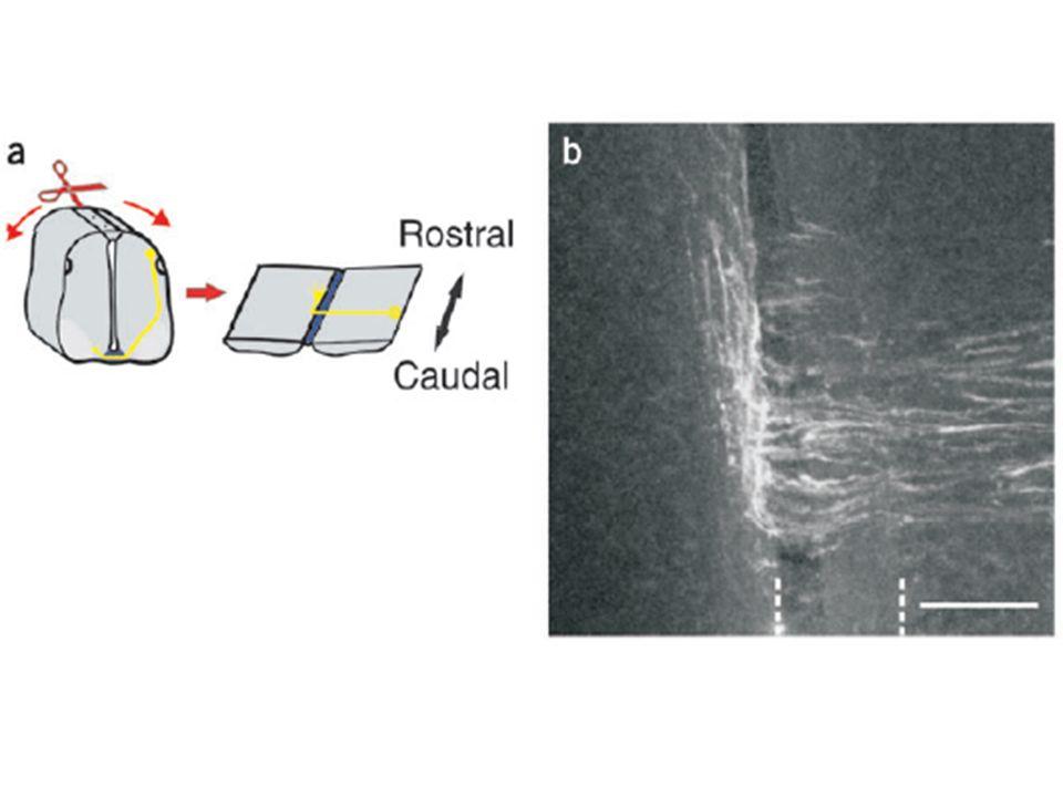 En face des billes Shh, pas de croissance axonale ou si cest le cas, axones tournent dans direction opposée dés quils entrent dans gel collagène.