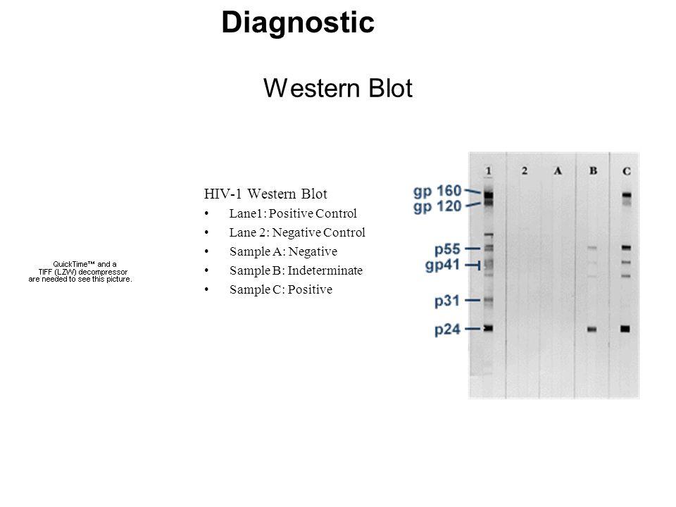 Western Blot HIV-1 Western Blot Lane1: Positive Control Lane 2: Negative Control Sample A: Negative Sample B: Indeterminate Sample C: Positive Diagnos