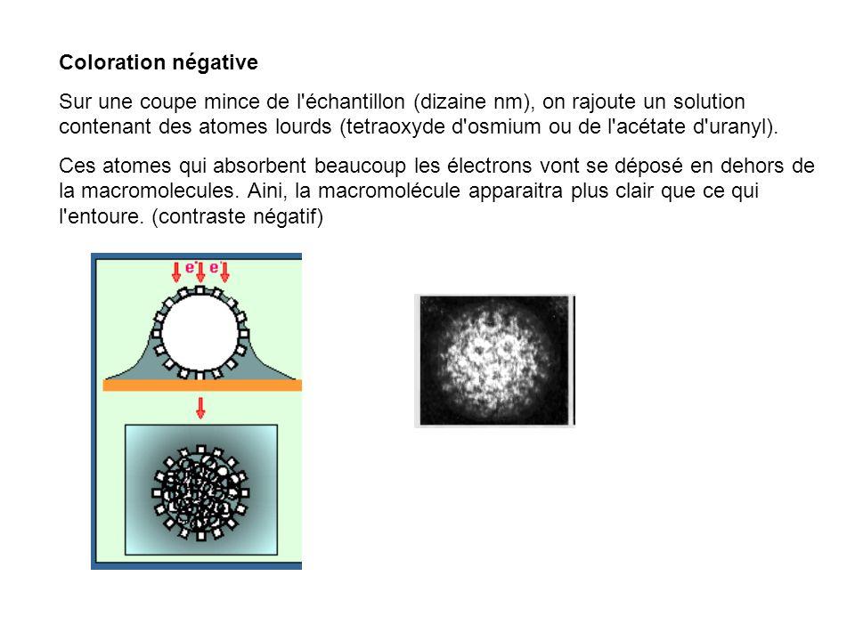 Coloration négative Sur une coupe mince de l'échantillon (dizaine nm), on rajoute un solution contenant des atomes lourds (tetraoxyde d'osmium ou de l