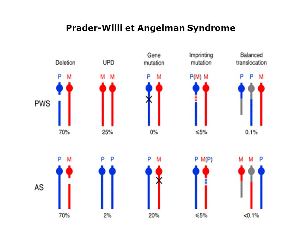 Prader-Willi et Angelman Syndrome