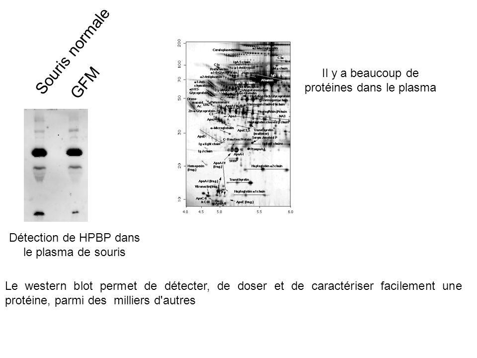 Souris normale GFM Détection de HPBP dans le plasma de souris Le western blot permet de détecter, de doser et de caractériser facilement une protéine, parmi des milliers d autres Il y a beaucoup de protéines dans le plasma