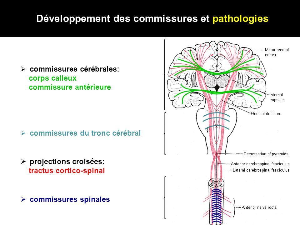 Développement des commissures et pathologies commissures cérébrales: corps calleux commissure antérieure commissures spinales projections croisées: tr