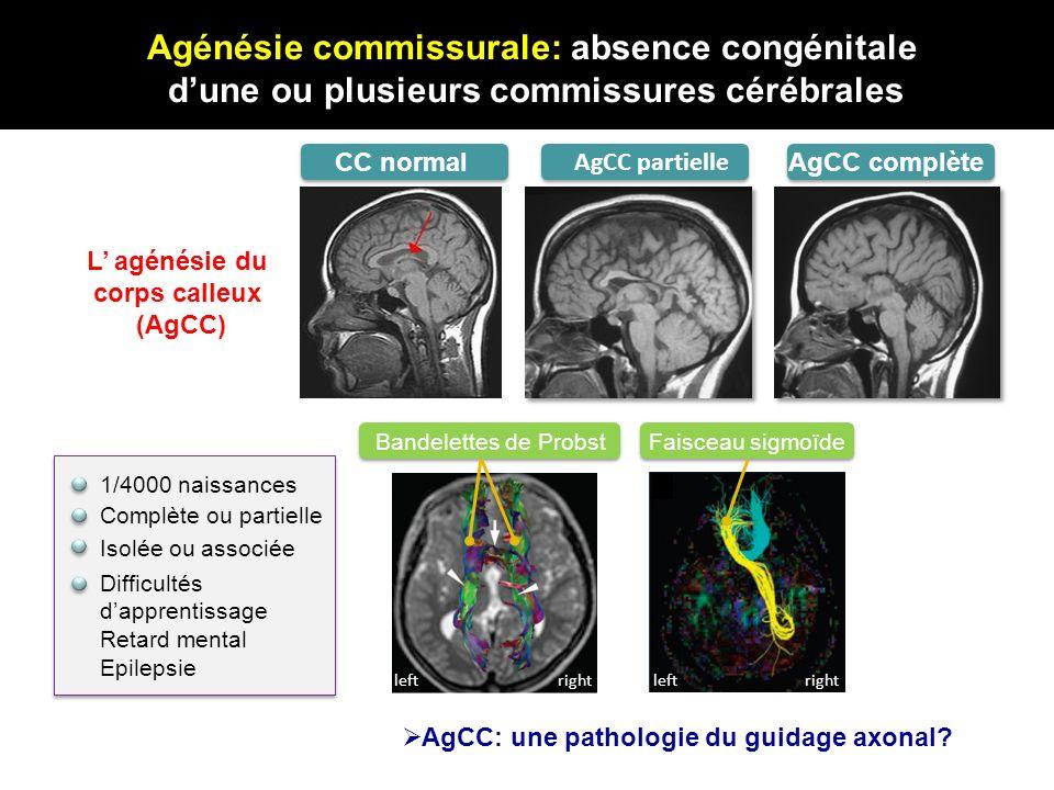 AgCC: une pathologie du guidage axonal? 1/4000 naissances Complète ou partielle Difficultés dapprentissage Retard mental Epilepsie leftrightleftright