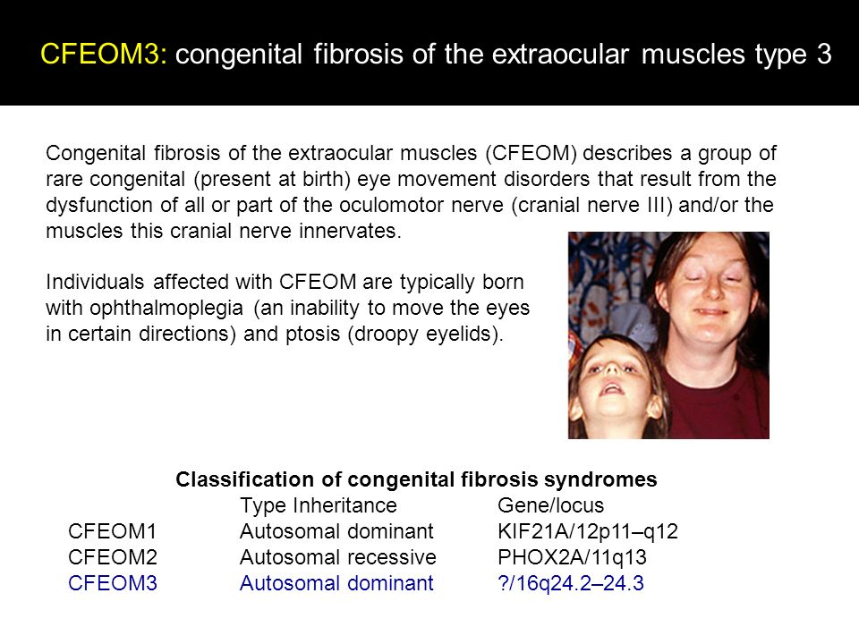 CFEOM3: congenital fibrosis of the extraocular muscles type 3 Table 2 Classification of congenital fibrosis syndromes Type Inheritance Gene/locus CFEO