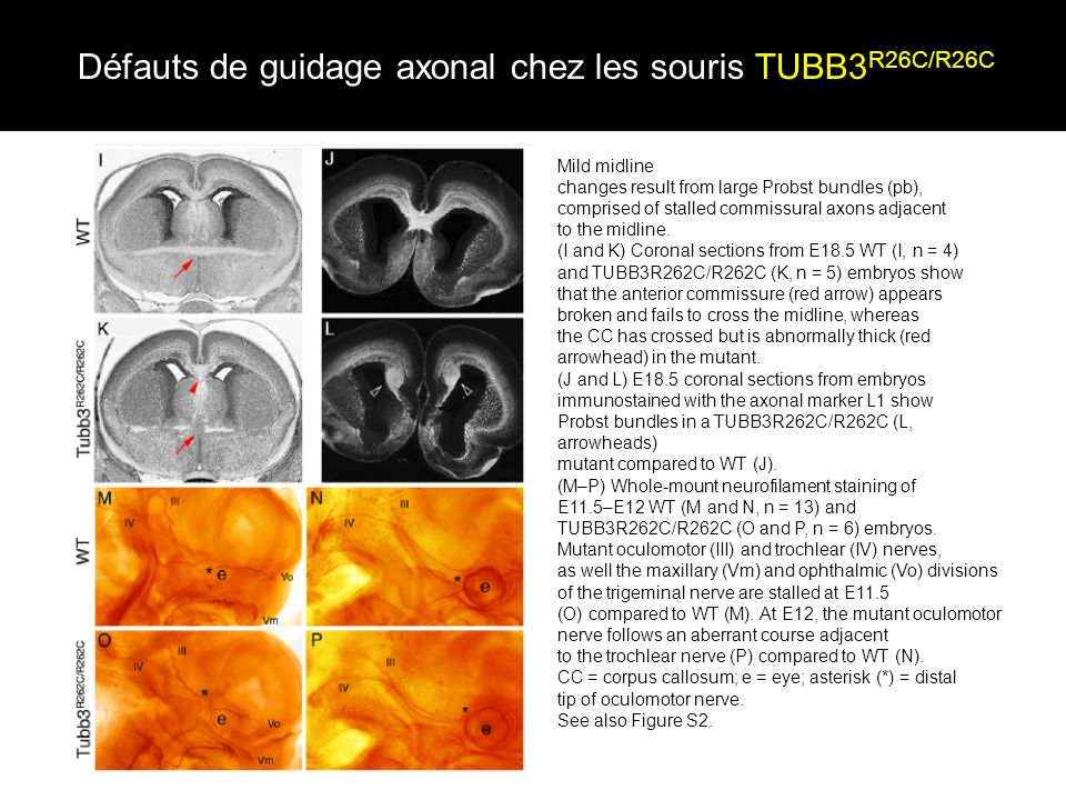 Défauts de guidage axonal chez les souris TUBB3 R26C/R26C Mild midline changes result from large Probst bundles (pb), comprised of stalled commissural