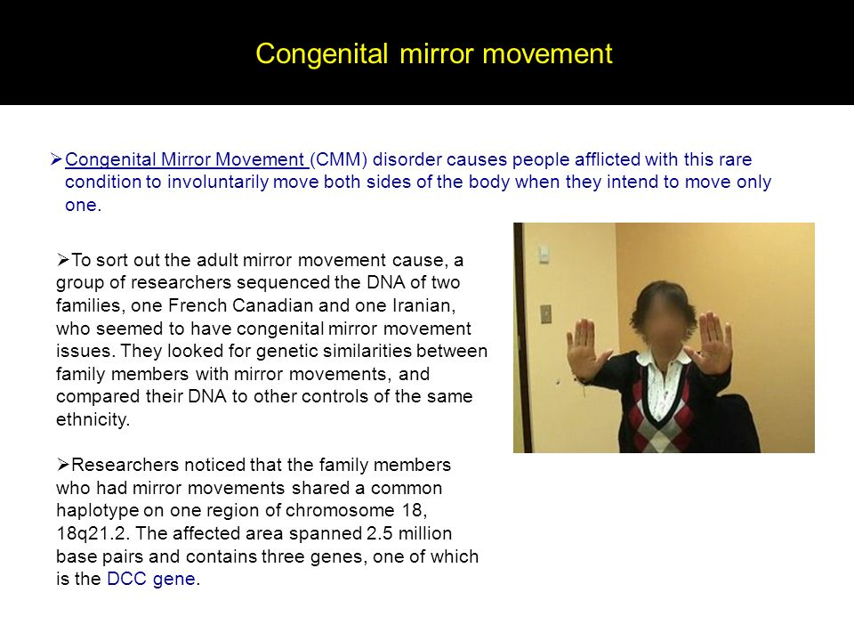 Congenital mirror movement Congenital Mirror Movement (CMM) disorder causes people afflicted with this rare condition to involuntarily move both sides