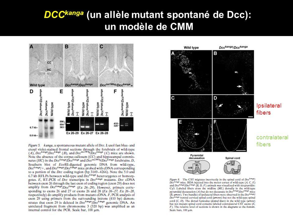 DCC kanga (un allèle mutant spontané de Dcc): un modèle de CMM Ipsilateral fibers contralateral fibers