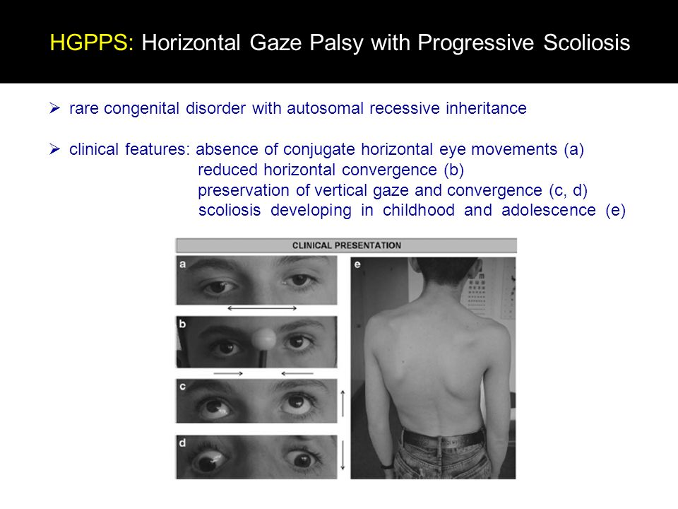 rare congenital disorder with autosomal recessive inheritance clinical features: absence of conjugate horizontal eye movements (a) reduced horizontal