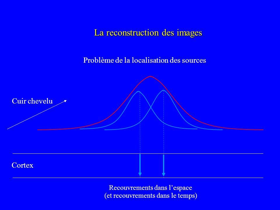 La reconstruction des images Problème de la localisation des sources Cortex Cuir chevelu Recouvrements dans lespace (et recouvrements dans le temps)