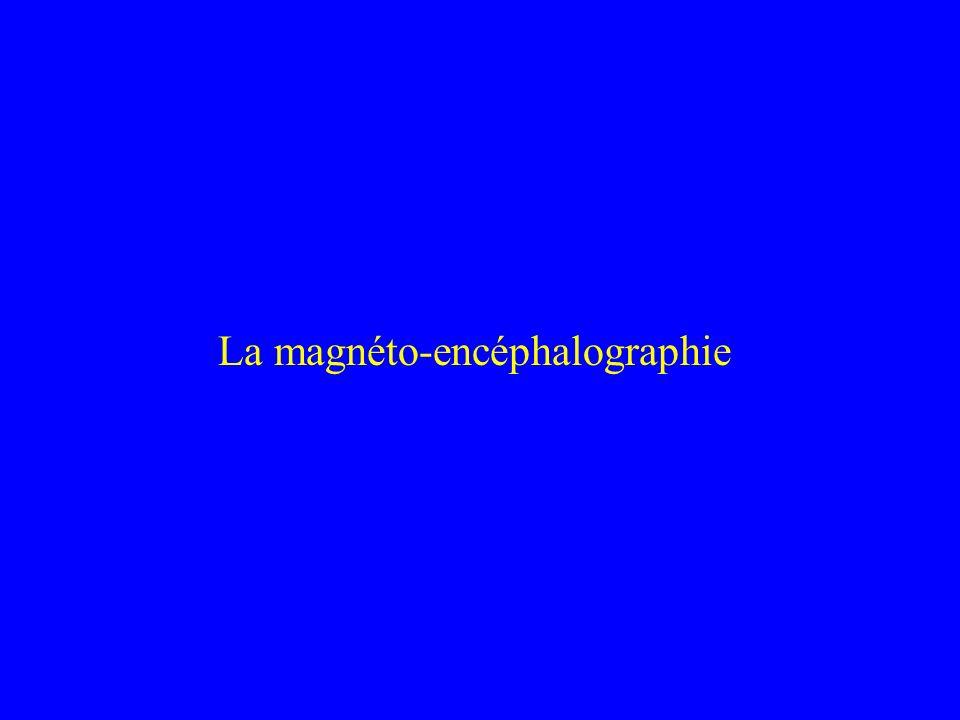 La magnéto-encéphalographie